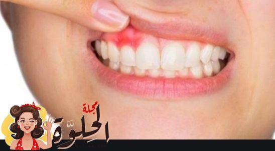 علاج خراج الأسنان بالمضاد الحيوي ونصائح طبية للوقاية من خراج الأسنان Teeth Antibiotic