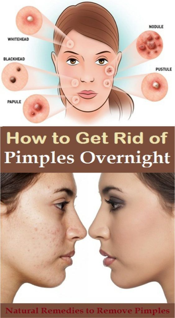 82af2ee76c19925cbdea12266f4ce001 - How To Get Rid Of Pimples And Pores Fast