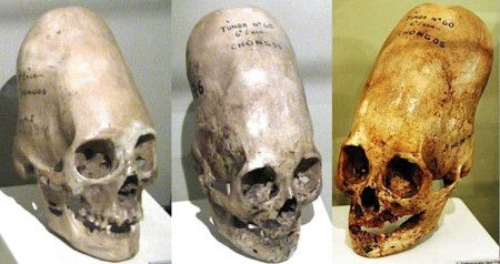 Three Paracas Necropolis Culture skulls, showing different shapes produced by…