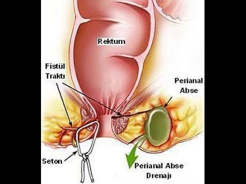 Amusing symptoms anal photos fistula and very pity me