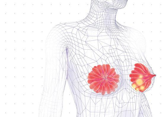 Quando fazer um exame para detectar o câncer de mama?