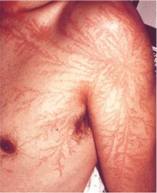 lichtenberg scars from lightning strike
