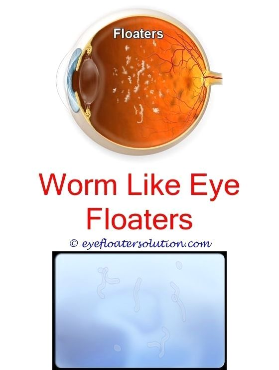 I Got Rid Of Eye Floaters Other Causes Of Eye Floaters Nutrients Good For Eye Floaters What Ex Natural Headache Remedies Migraines Remedies Headache Remedies
