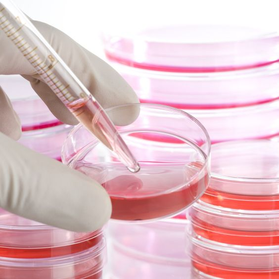 Cells Thought To Cause Lupus May Not Affect Its Later Progression Lupus News Today Stem Cell Transplant Cell Therapy Stem Cells