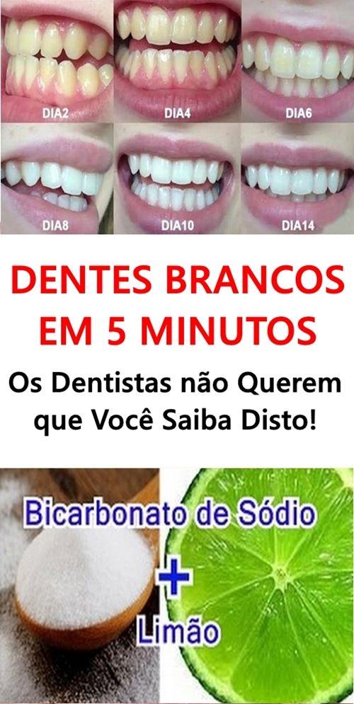 Dentes Brancos Em 5 Minutos Os Dentistas Nao Querem Que Voce
