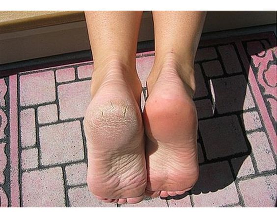 Foot bottom dry photos opinion