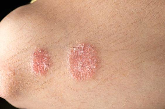 Bệnh vẩy nến có lây không? Nguyên nhân nào gây nên tình trạng vẩy nến?