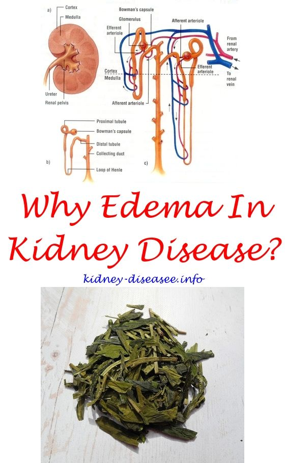 Kidney Cleanse Diy Kidney Infection Polycystic Kidney Disease Chronic Kidney Disease