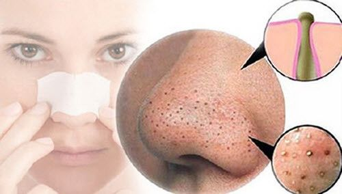 Nguyên nhân và cách trị mụn bọc ở mũi