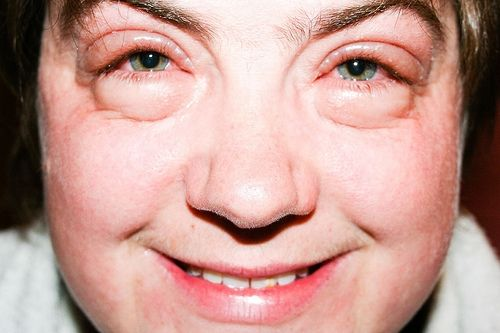 botulinum toxin szemek)