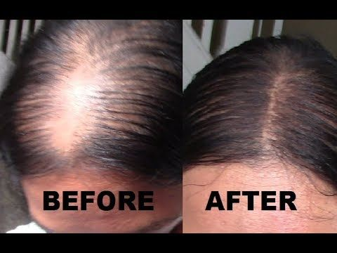 $4 MAKEUP: HOW TO GET A SCALP LINE OR NATURAL PART FOR THIN ...