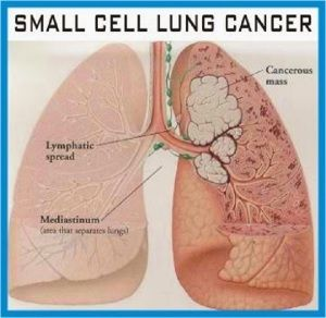 I need help on my lung cancer research paper?