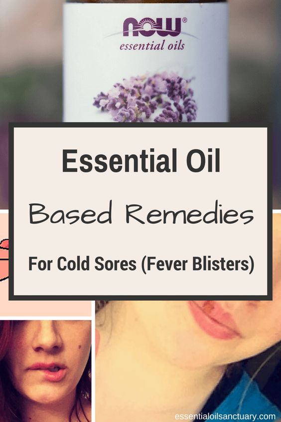 Essential oil based remedies for cold sores fever blisters