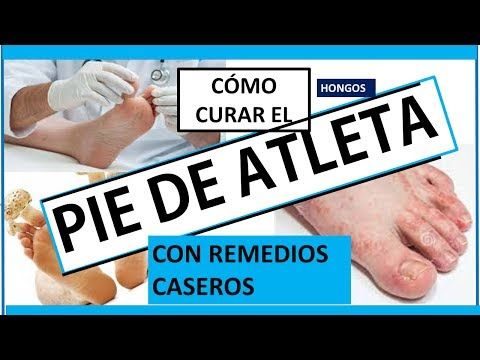 Cómo Quitar El Pie De Atleta Micosis Hongos En Los Pies How To Remove Foot Fungus Youtube Como Quitar Pie De Atleta Uñas Pies