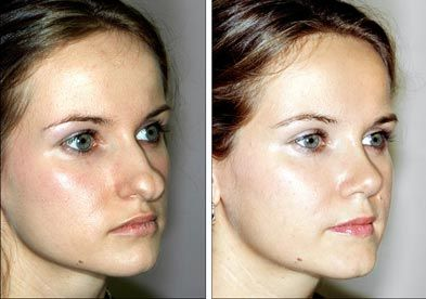 why people choose to have plastic surgery and the risks involved