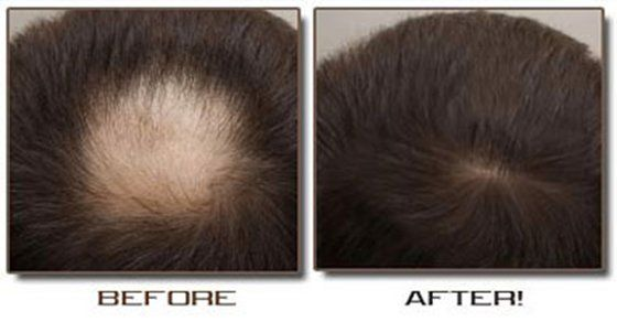 How To Treat Hair Loss with ion Juice and Honey