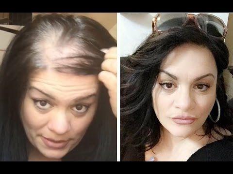 How To Hide Thin Balding Head With Hair Topper Youtube Thin Hair Styles For Women Hair Loss Wigs Thin Hair Haircuts