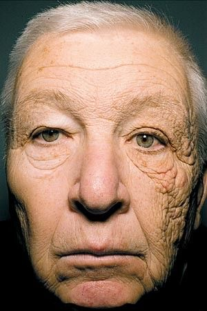 The most compelling example of why you should wear sunscreen. This 69 yo truck driver was exposed to the sun while driving
