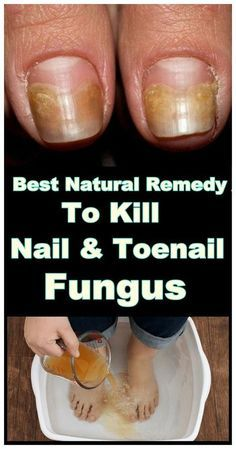 Best Natural Remedy To Kill Nail And Toenail Fungus Toenail Fungus Remedies Toe Fungus Remedies Toenail Fungus Cure