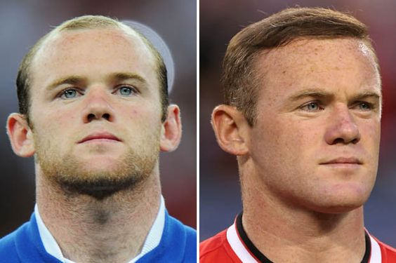Wayne Rooney before and after hair transplant.  #Wayne #Rooney #before #and #after #hair #transplant #london #uk #hair #loss #treatment #FUE #FUT
