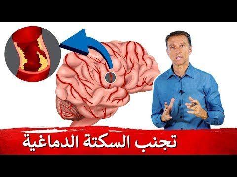 الجلطة الدماغية الصامتة كيف تتجنب السكتة دكتور بيرج Youtube Sante