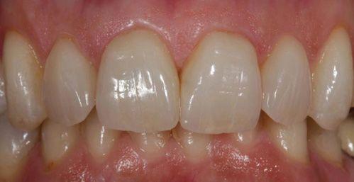 nondas-teeth2
