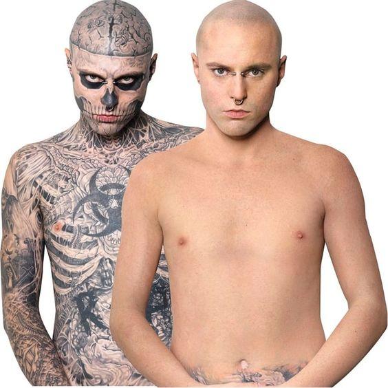 remover tatuagem preço