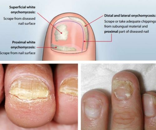 These Types Of Infections Can Occur On Both The Toenails And The Nails On The Hand Typically The Nail Begin Toenail Fungus Remedies Toenail Fungus Toe Fungus