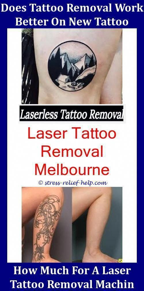 Can Tattoos Be Removed Completely How Effective Is Tca For Tattoo ...