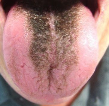 Image result for hairy tongue