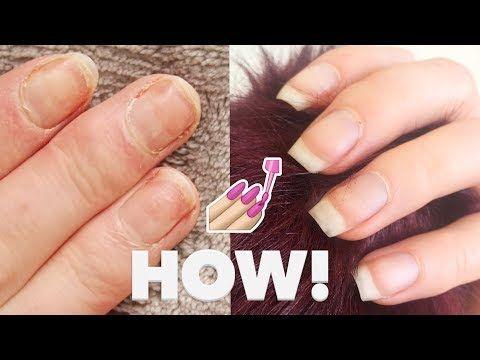 Paper Thin Nails After Acrylics Nails After Acrylics Damaged Nails Natural Nails Manicure