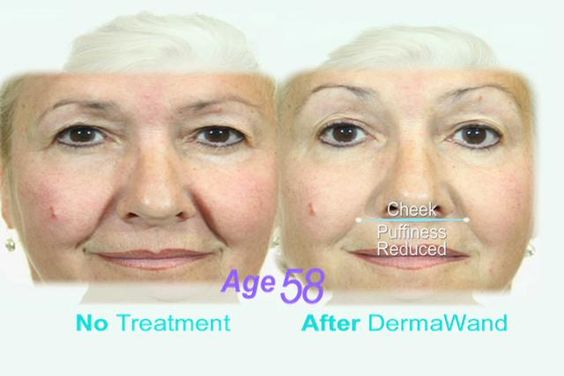 Derma Wand is a condensed version of the exact same technology found in large commercial high frequency machines used by skin care specialists all over the world for 40 years. Why