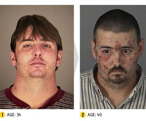 Drug Abuse Brain Before And After
