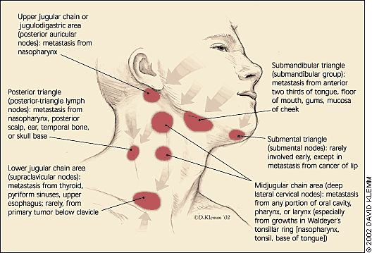 Lymph Nodes The O Jays And Jaw Pain On Pinterest
