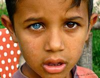 Most Rare Eye Color | two different colored eyes it would be tall order indeed for me to ...