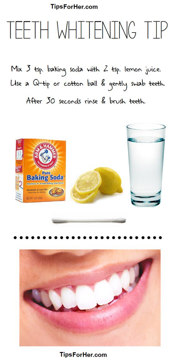 Teeth Whitening Tip Items Needed: 3 tsp. baking soda 2 tsp. lemon juice Q-Tip or Cotton Swab Glass of Water Coffee, acidic food & drink cause teeth to easily stain. OTC products are expensive a…