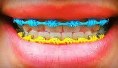 Aparelhos Falsos - Aparelhos Fakes - Dentista Especialista em Ortodontia Invisalign Itaim Bibi