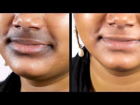 88997e17e15a36f787a6835fbc262f0b - How To Get Rid Of Black Marks Around Mouth