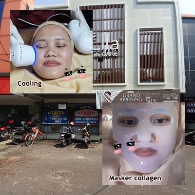 perawatan wajah laser di Sidoarjo