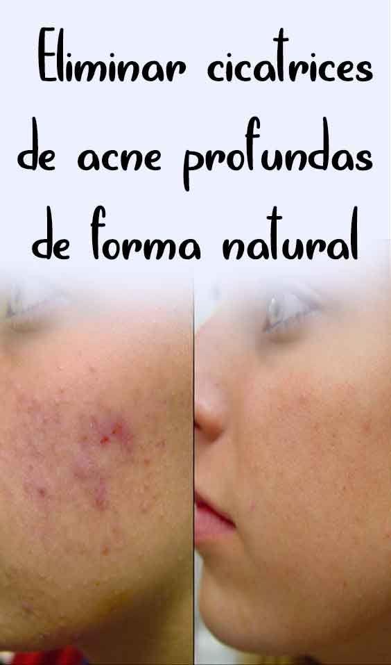 remedios para quitar cicatrices de acne
