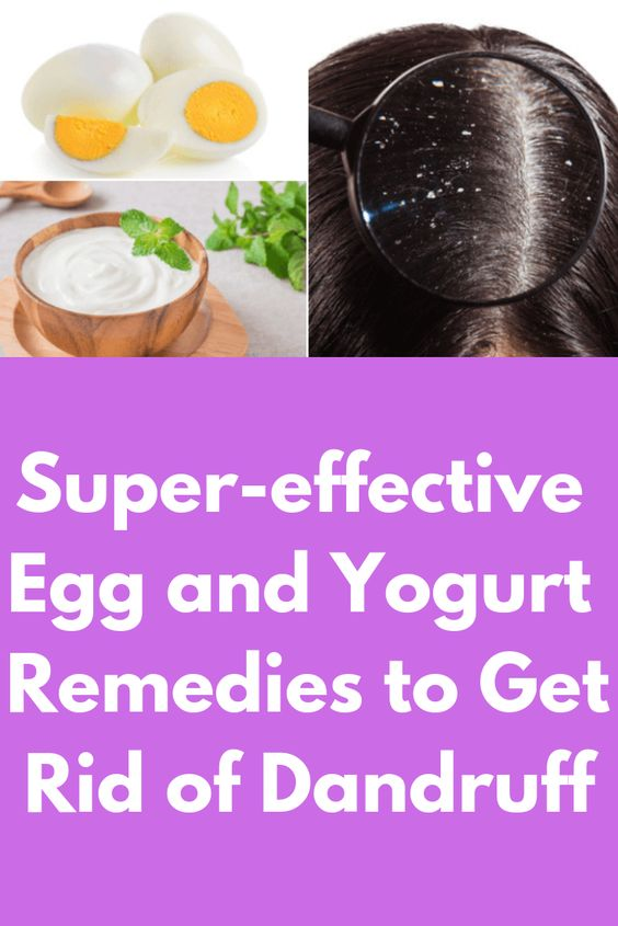 Super-effective Egg and Yogurt Remedies to Get Rid of Dandruff This article shows the easy and simple home remedies to treat dandruff...