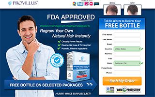 Provillus For Men With Images Men Health Tips Hair Loss Hair