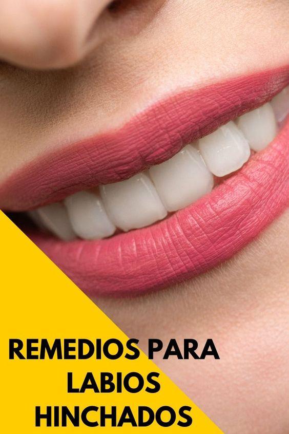 remedios caseros para labios hinchados