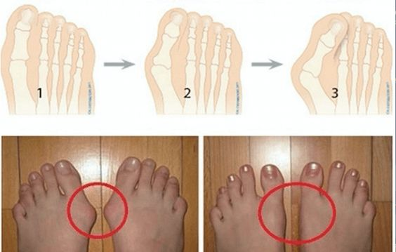 A bunion is a bony bump that forms on the joint at the base of your big toe. A bunion forms when your big toe pushes against your next toe, forcing the joint of your big toe to get bigger and stick out. The skin over the bunion might be red and sore. Wearing tight, narrow shoes might cause bunions or might make them worse. Bunions can also develop as a result of an inherited structural defect, stress on your foot or a medical condition, such as arthritis. Smaller bunions also can develop on…