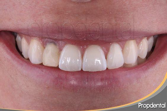 prótesis provisional sobre implante dental