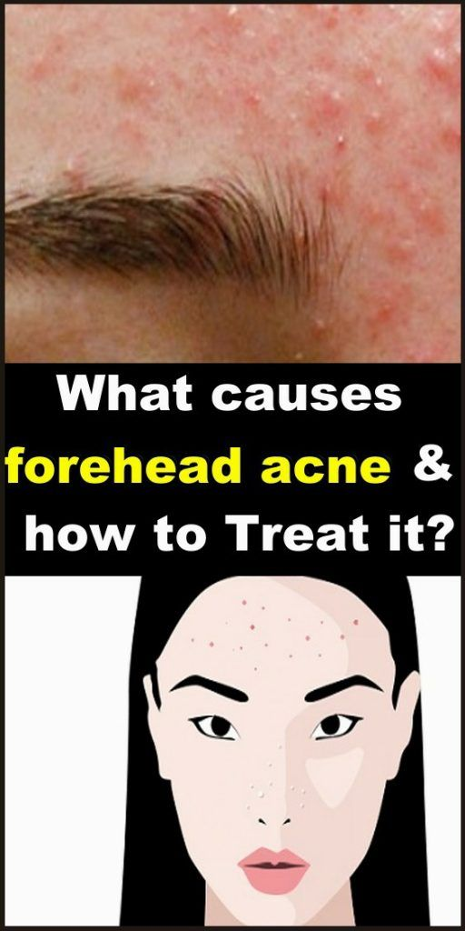 Beauty What Causes Forehead Acne And How To Treat It Forehead Acne Skin Care Pimples Acne