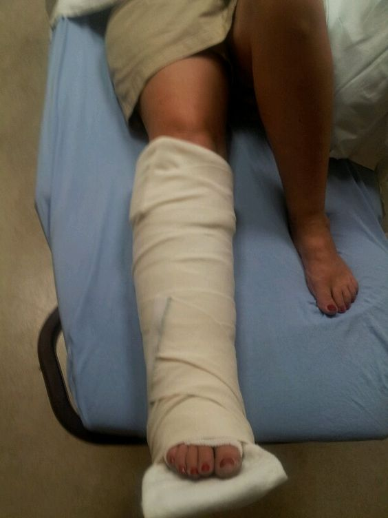 How to walk again after broken ankle - Doctor answers