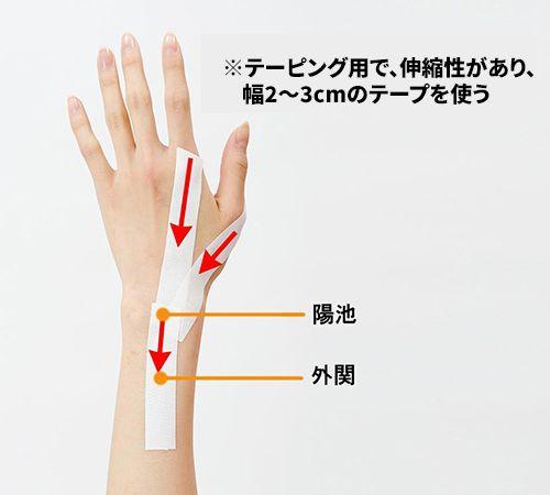 管 手 ツボ 根 症候群
