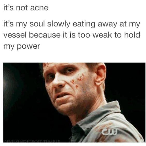 "#Supernatural haha Lucifer .. Mark Pellegrino .. ""it's not acne"""