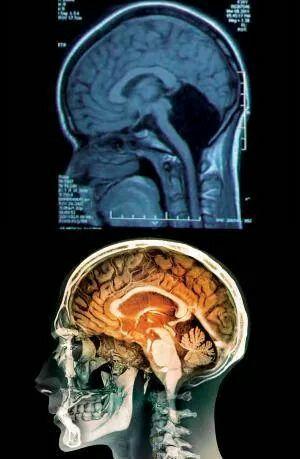 No cerebellum in a 24y girl